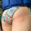 蚊に刺されたお尻がセクシーすぎる!グラドル・廣瀬聡子、佐倉仁菜とのビキニツーショットも披露「蚊になりたい笑」「ずいぶん腫れたね」