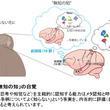 「無知の知」を生み出す脳の仕組みを解明!