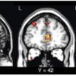 自閉スペクトラム症への「オキシトシン」反復投与は何故うまく行かないのか