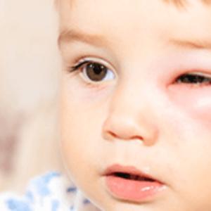 新生児 目 の 周り 赤い