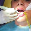 これって歯周病?歯茎がやせてカッコ悪い【歯医者アドバイス】