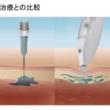 注射を使わず、高圧エアで頭皮に浸透注入 AGAスキンクリニックが痛くない発毛治療「ミノキジェット」を日本初導入