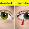 目で分かる10の健康問題 虹彩の周りにこの兆候があったら注意!