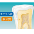 エナメル質への酸によるダメージ「酸蝕歯」に着目したブランド「シュミテクト PROエナメル」高濃度フッ素配合<1450ppm>でリニューアル発売!